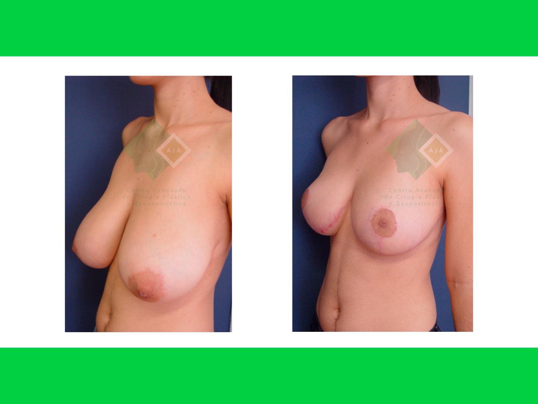 Centro avanzado de cirugi%cc%81a pla%cc%81stica y reconstructiva breastlift05