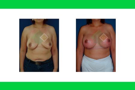 Centro avanzado de cirugi%cc%81a pla%cc%81stica y reconstructiva breastliftwith implants01