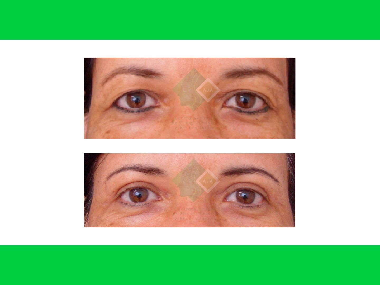 Centro avanzado de cirugi%cc%81a pla%cc%81stica y reconstructiva blepharoplasty01
