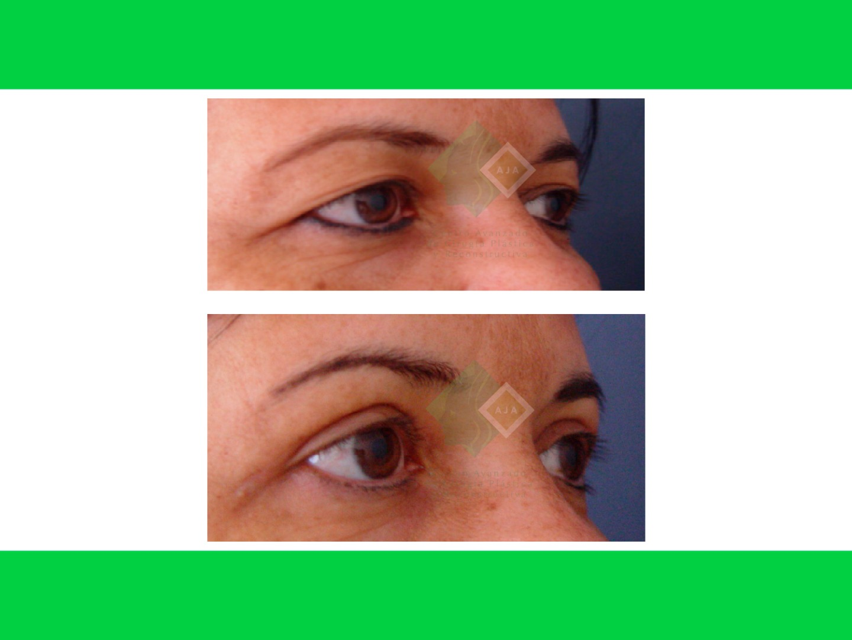 Centro avanzado de cirugi%cc%81a pla%cc%81stica y reconstructiva blepharoplasty02
