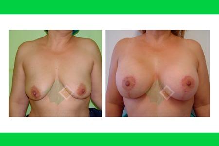 Centro avanzado de cirugi%cc%81a pla%cc%81stica y reconstructiva breastliftwithimplants03