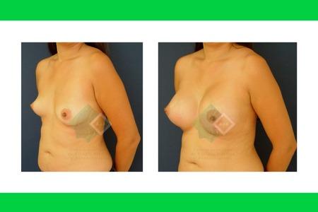 Centro avanzado de cirugi%cc%81a pla%cc%81stica y reconstructiva breastliftwithimplants06