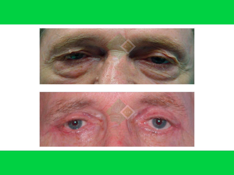 Centro avanzado de cirugi%cc%81a pla%cc%81stica y reconstructiva blepharoplasty03