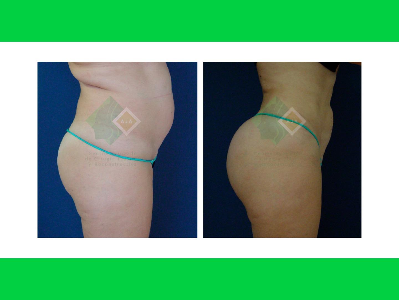 Centro avanzado de cirugi%cc%81a pla%cc%81stica y reconstructiva fattransfer01