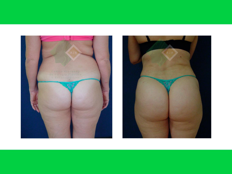Centro avanzado de cirugi%cc%81a pla%cc%81stica y reconstructiva fattransfer02