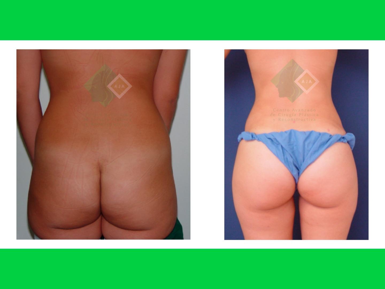 Centro avanzado de cirugi%cc%81a pla%cc%81stica y reconstructiva fattransfer04