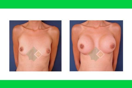 Centro avanzado de cirugi%cc%81a pla%cc%81stica y reconstructiva implants01