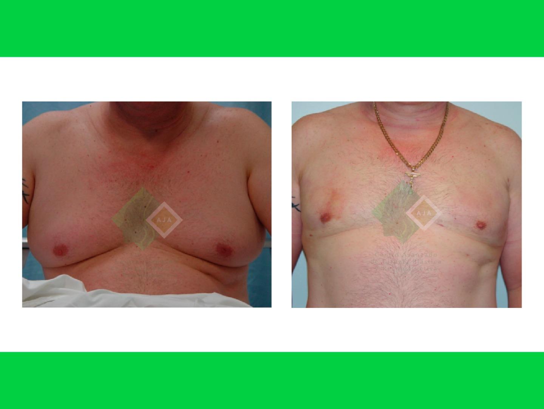 Centro avanzado de cirugi%cc%81a pla%cc%81stica y reconstructiva gynecomasty01