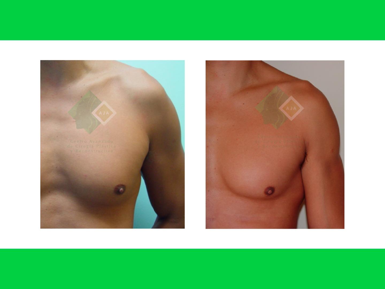 Centro avanzado de cirugi%cc%81a pla%cc%81stica y reconstructiva hdlipo01