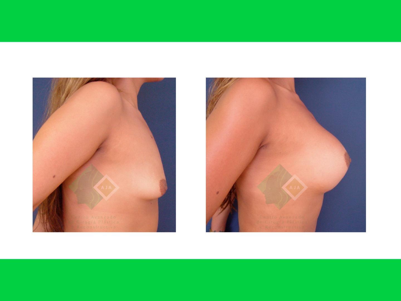 Centro avanzado de cirugi%cc%81a pla%cc%81stica y reconstructiva implants05