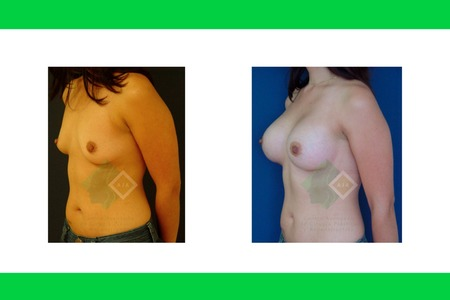 Centro avanzado de cirugi%cc%81a pla%cc%81stica y reconstructiva implants07