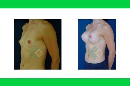 Centro avanzado de cirugi%cc%81a pla%cc%81stica y reconstructiva implants08