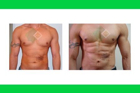 Centro avanzado de cirugi%cc%81a pla%cc%81stica y reconstructiva hdlipo02