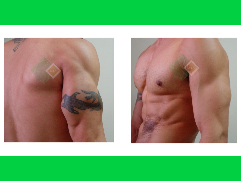 Centro avanzado de cirugi%cc%81a pla%cc%81stica y reconstructiva hdlipo03