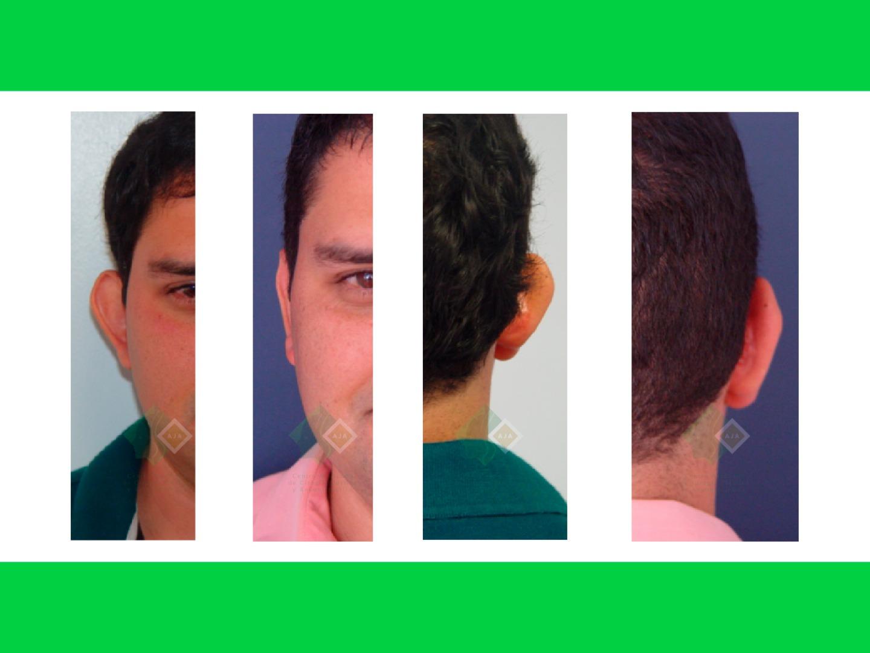 Centro avanzado de cirugi%cc%81a pla%cc%81stica y reconstructiva otoplasty01