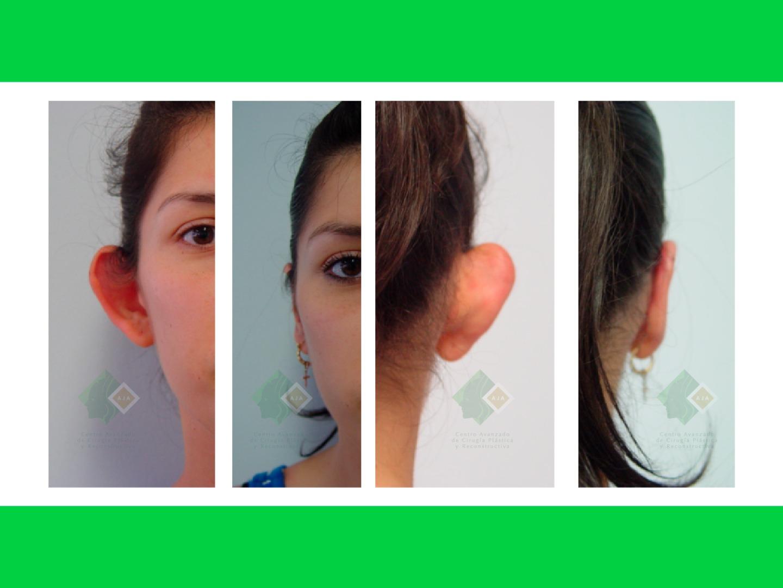 Centro avanzado de cirugi%cc%81a pla%cc%81stica y reconstructiva otoplasty03
