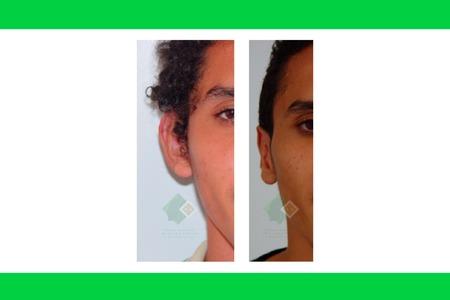 Centro avanzado de cirugi%cc%81a pla%cc%81stica y reconstructiva otoplasty02