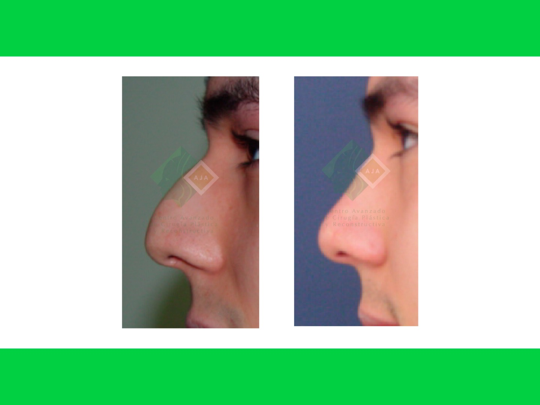 Centro avanzado de cirugi%cc%81a pla%cc%81stica y reconstructiva rhinoplasty01
