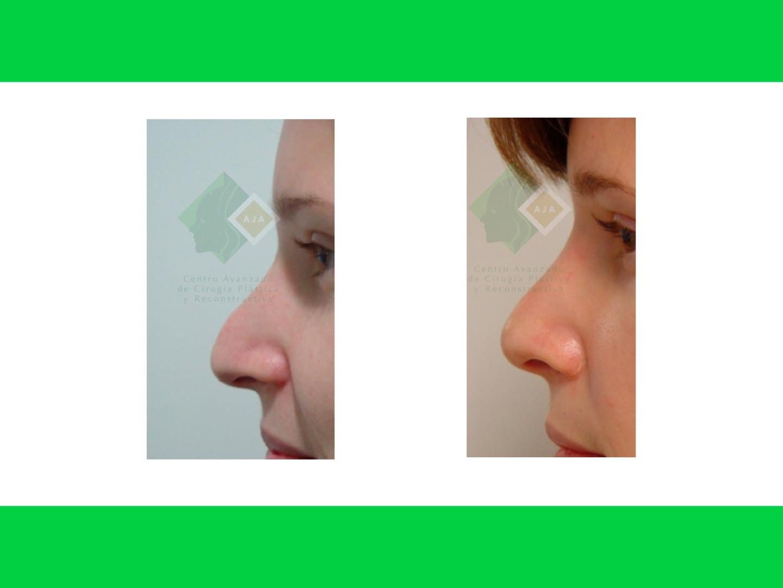 Centro avanzado de cirugi%cc%81a pla%cc%81stica y reconstructiva rhinoplasty03