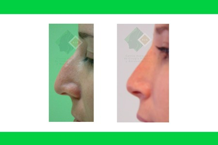Centro avanzado de cirugi%cc%81a pla%cc%81stica y reconstructiva rhinoplasty02
