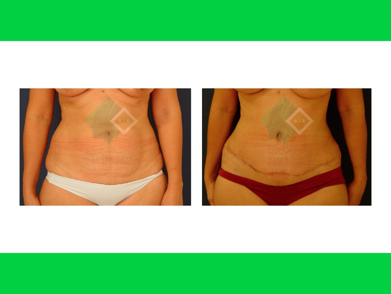 Centro avanzado de cirugi%cc%81a pla%cc%81stica y reconstructiva tummytuck lipo01