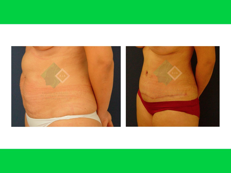Centro avanzado de cirugi%cc%81a pla%cc%81stica y reconstructiva tummytuck lipo02