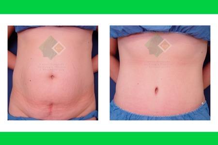 Centro avanzado de cirugi%cc%81a pla%cc%81stica y reconstructiva tummytuck02