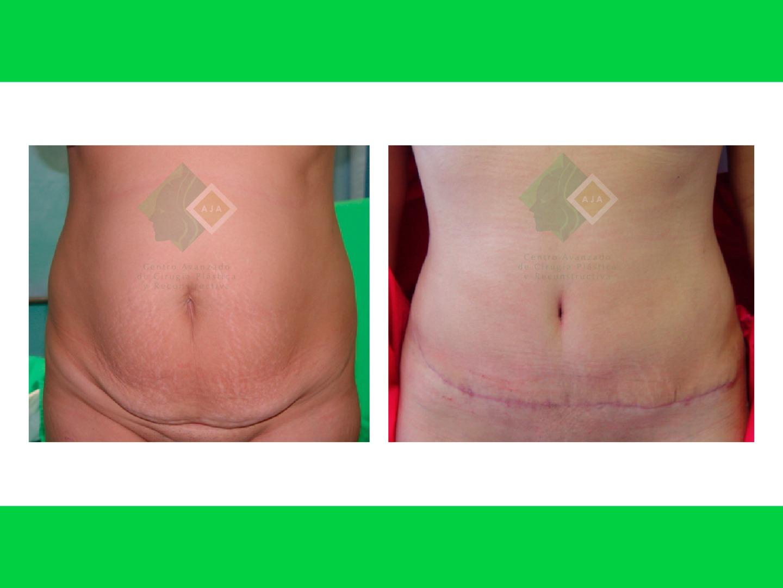 Centro avanzado de cirugi%cc%81a pla%cc%81stica y reconstructiva tummytuck04