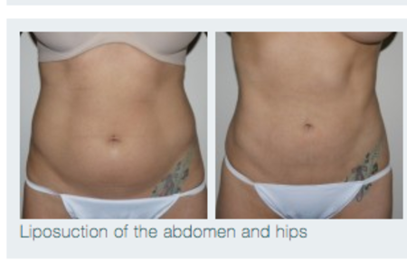 Laser / Liposuction