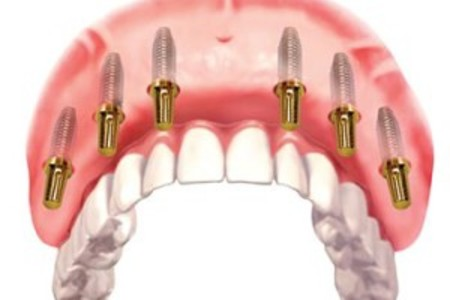 All-On-6 Dental Procedure