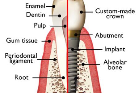 Anatomy single dental implant