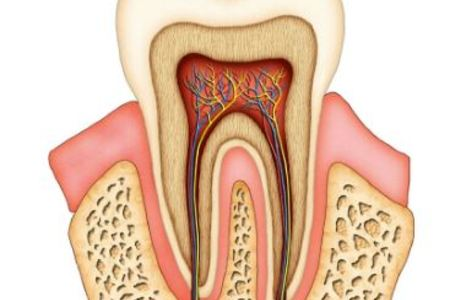 Endodontic / Root Canal