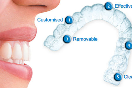 Invisalign Orthodontic Procedure
