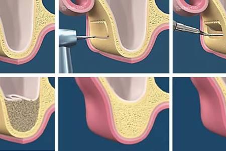 Sinus lift entire procedure