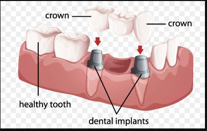 Unit implant supported bridge 1