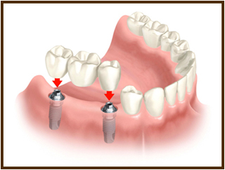 Unit implant supported bridge
