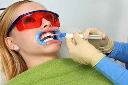 Laser Whitening (Teeth Whitening)