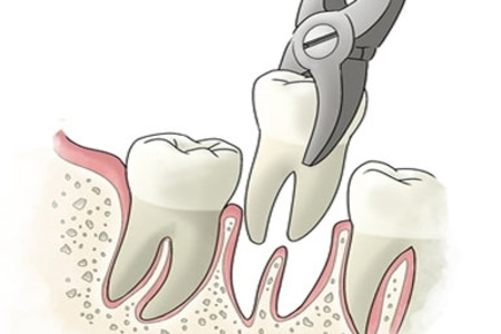 Simple tooth extraction