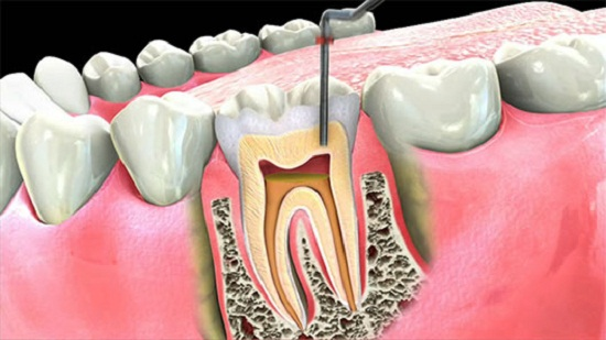 Root canal 1