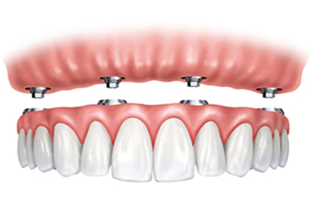 Four Or More Dental Implants