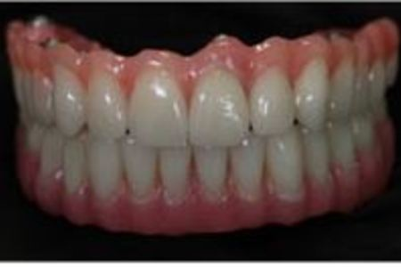 IMPLANT SUPPORTED DENTURES / HYBRID DENTURES