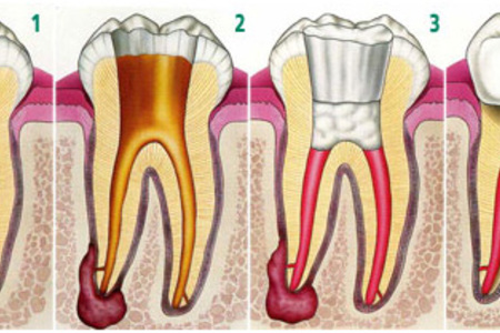 Endodontic procedure