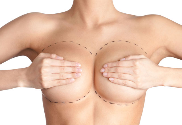 Breastlift1