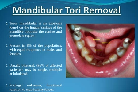 Removal Of Mandibular Torus Per Side Globomd