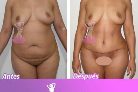 TUMMY TUCK , LIPO AND BBL Bundle*