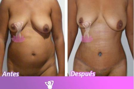 TUMMY TUCK AND LIPO Bundle***