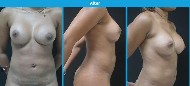 Breast1