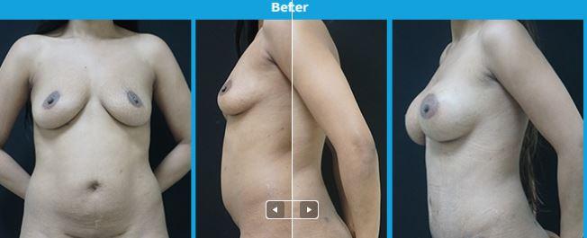 Breast4