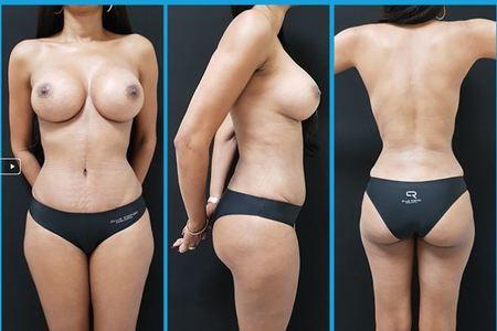 Tummy1