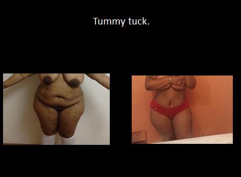 Tummy tuck3
